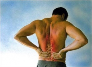 Kelly Chiropractic low back pain